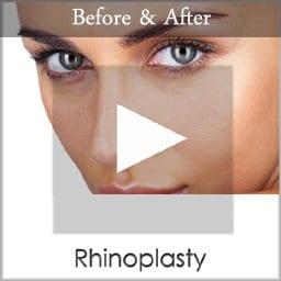 rhinoplasty copy