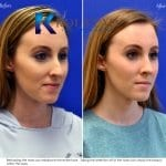 san diego teen rhinoplasty 208 copy