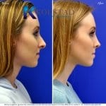 san diego teen rhinoplasty 2d08 copy