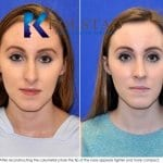 san diego teen rhinoplasty 2308 copy
