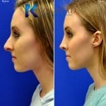 san diego teen rhinoplasty 20328 copy