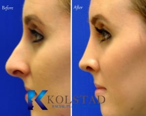 san diego teen rhinoplasty 20228 copy