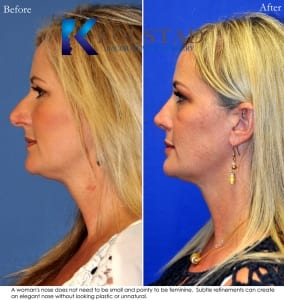 rhinoplasty san diego 220 copy
