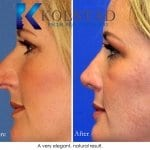rhinoplasty san diego 221 copy