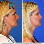 rhinoplasty san diego 222 copy
