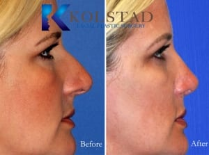 rhinoplasty san diego 223 copy