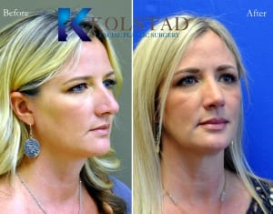 rhinoplasty san diego 225 copy
