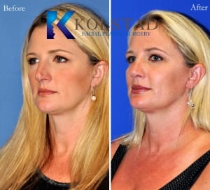 rhinoplasty san diego 226 copy