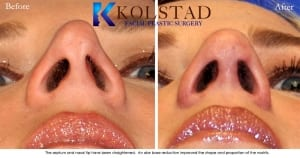 rhinoplasty san diego 228 copy