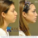 best rhinoplasty san diego 40 copy