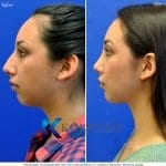 rhinoplasty san diego 5511 copy