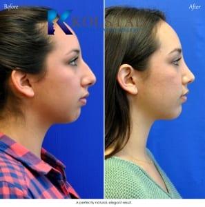 rhinoplasty san diego 5513 copy