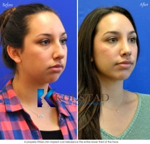 rhinoplasty san diego 5515 copy