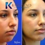 rhinoplasty san diego 5516 copy