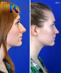 rhinoplasty san diego 5552