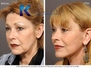 face lift san diego facelift