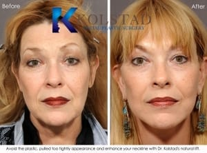 san diego facelift surgeon