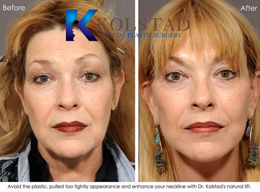 And facial surgery san