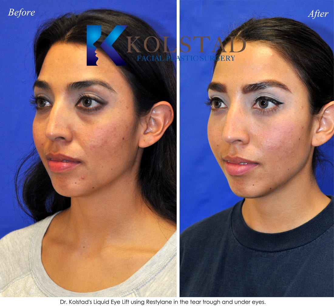 Restylane facial hurtsexcruciatingly cf for 101 salon west bloomfield