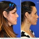 san diego rhinoplasty 635 copy