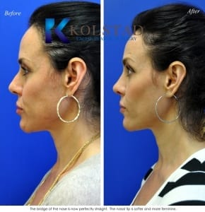 san diego rhinoplasty 637 copy