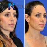 san diego rhinoplasty 640 copy