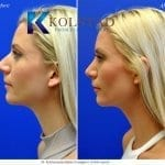 san diego rhinoplasty 725 copy