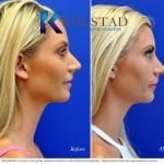 san diego rhinoplasty 727 copy