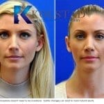 san diego rhinoplasty 729 copy