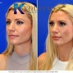 san diego rhinoplasty 730 copy