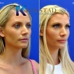 san diego rhinoplasty 731 copy