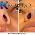 rhinoplasty san diego 5517 copy