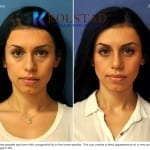 scarless blepharoplasty 1 copy