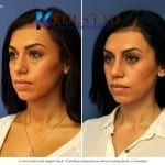 scarless blepharoplasty 3 copy