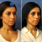 scarless blepharoplasty 4 copy