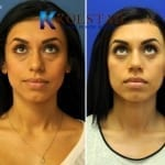 scarless blepharoplasty 5 copy