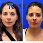scarless blepharoplasty san diego 20 copy
