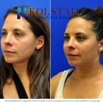scarless blepharoplasty san diego 22 copy