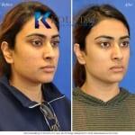 acne scar treatment san diego 100 copy