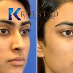 acne scar treatment san diego 101 copy