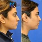 acne scar treatment san diego 105 copy