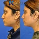 acne scar treatment san diego 107 copy