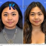 asian rhinoplasty san diego 500 copy