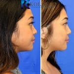 asian rhinoplasty san diego 503 copy