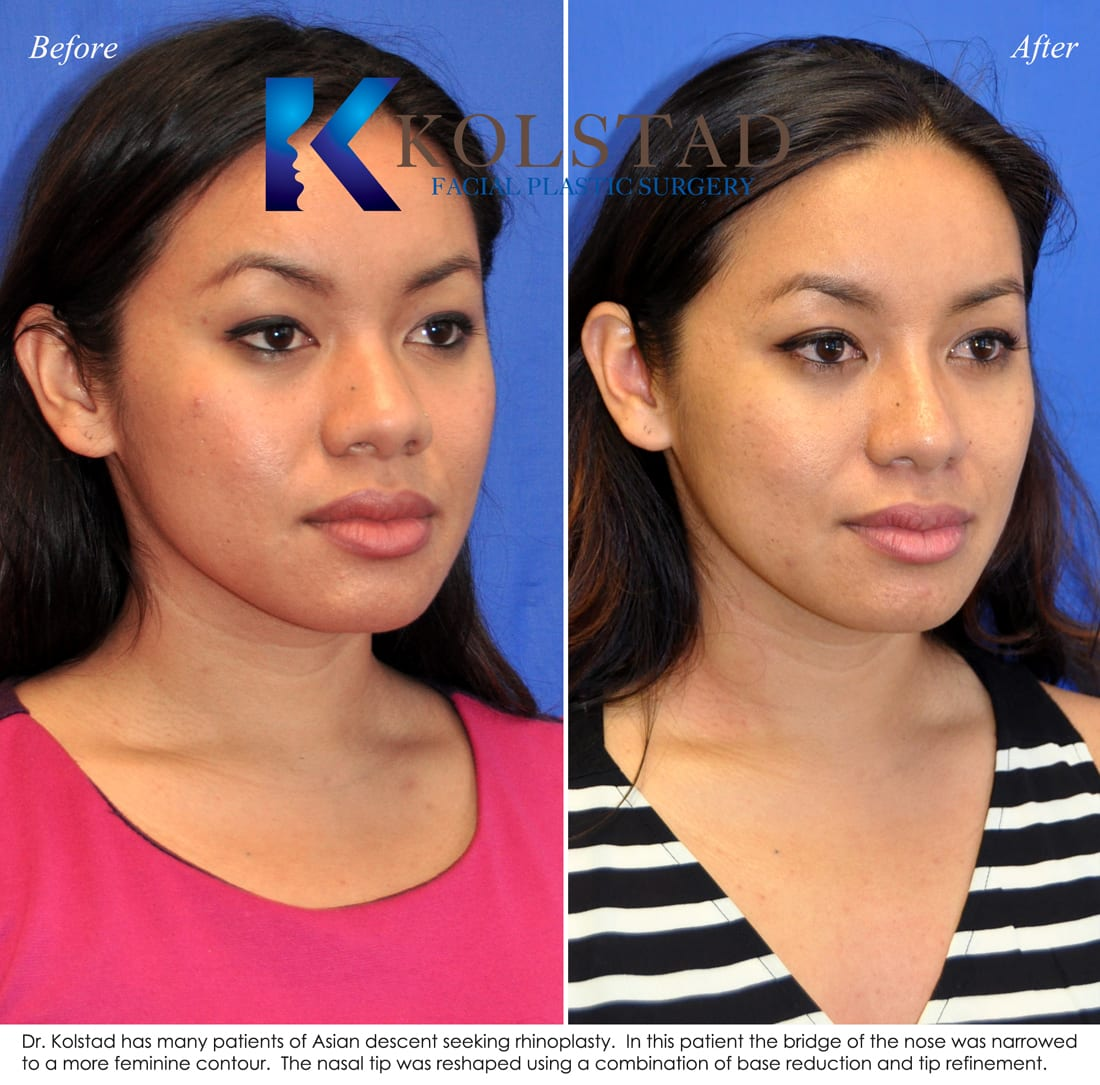 Asian nose surgery implants — pic 9