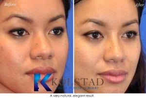 san diego asian rhinoplasty 201 copy