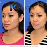 san diego asian rhinoplasty 202 copy