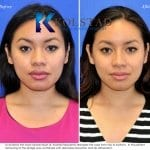 san diego asian rhinoplasty 205 copy