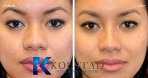 san diego asian rhinoplasty 206 copy