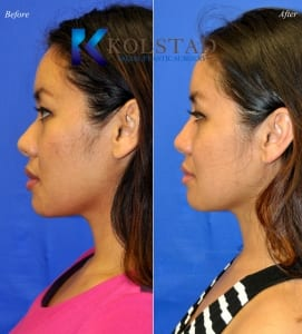 san diego asian rhinoplasty 208 copy